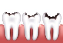 Dental caries