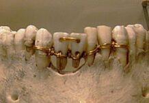 dentadura-egipcia