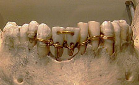 Sabías que desde el siglo  VIII a C. ya se corregía la colocación de los dientes…