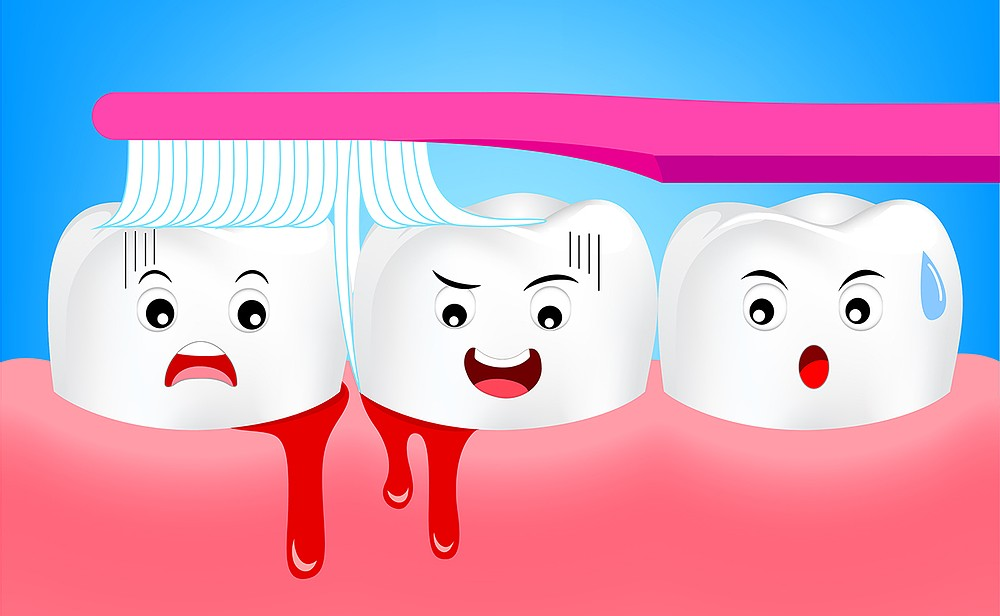 ¿Te sangran las encías al cepillarte?