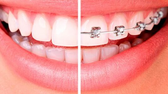 ortodoncia-y-brackets
